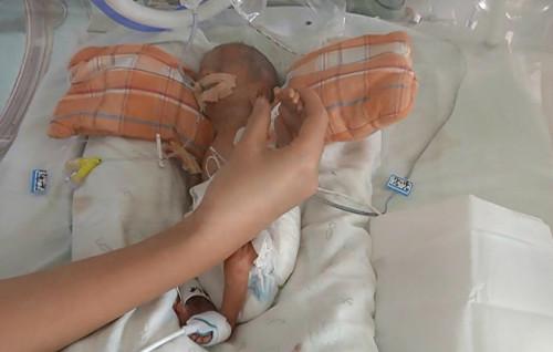 广州最轻掌心宝宝诞生 仅530克重情况危殆